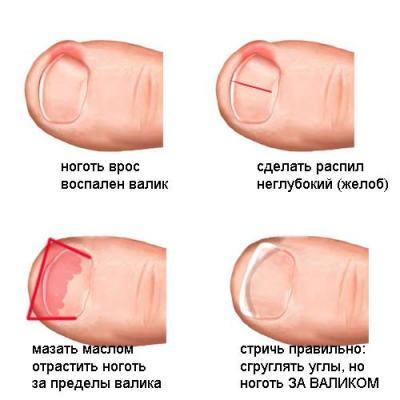 Уход за вросшим ногтем