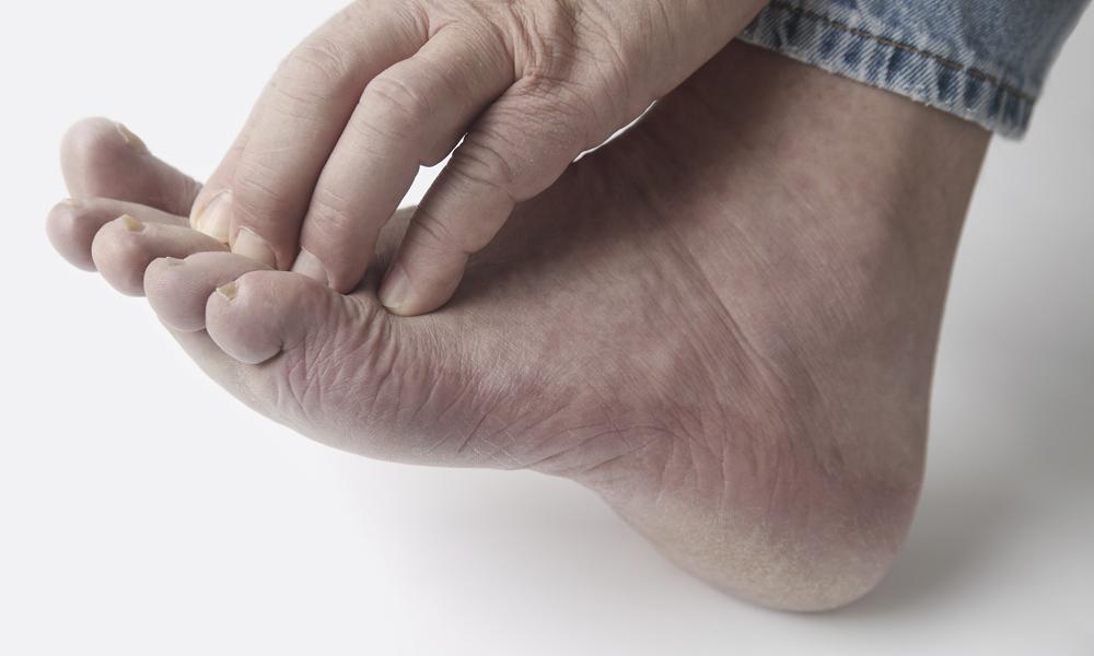 Появление грибка на пальцах ног