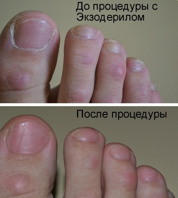 Эффект от применения Экзодерила