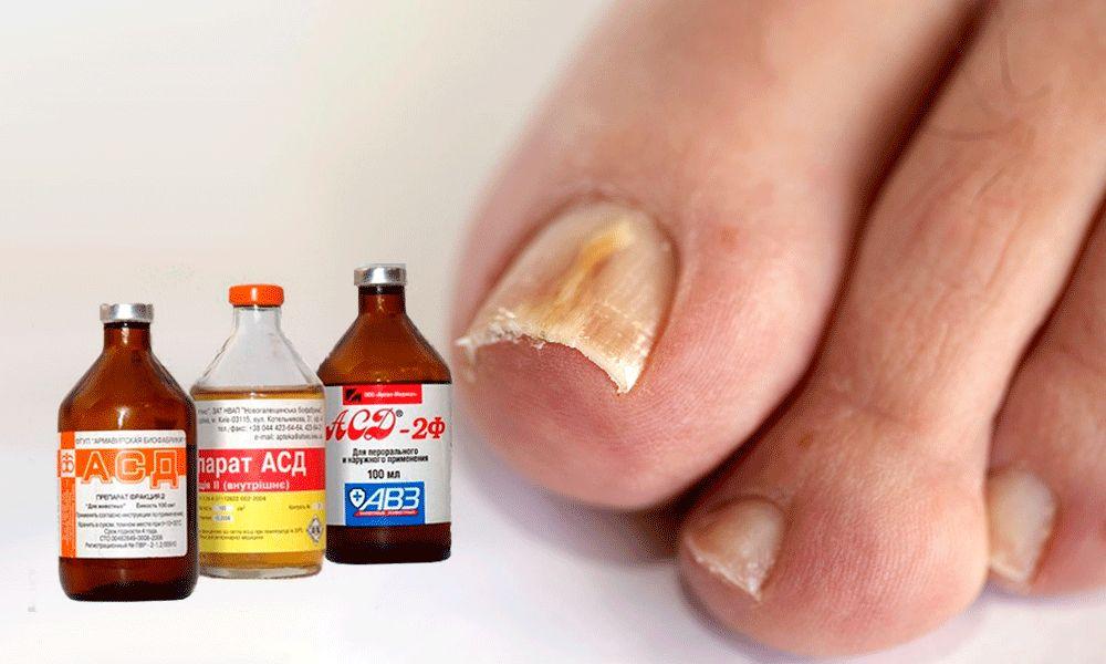 АСД от грибка ногтей