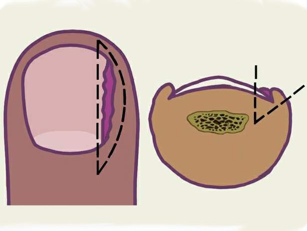 Схема удаления пораженного грибком ногтя