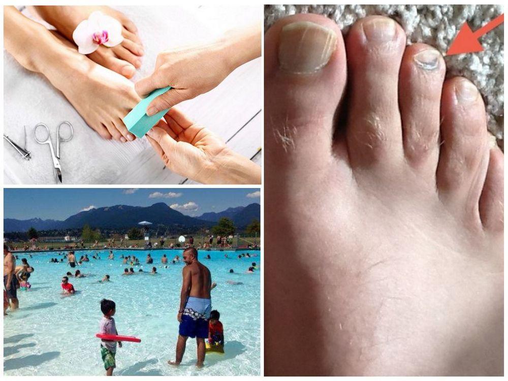 От чего появляется грибок ногтей на ногах