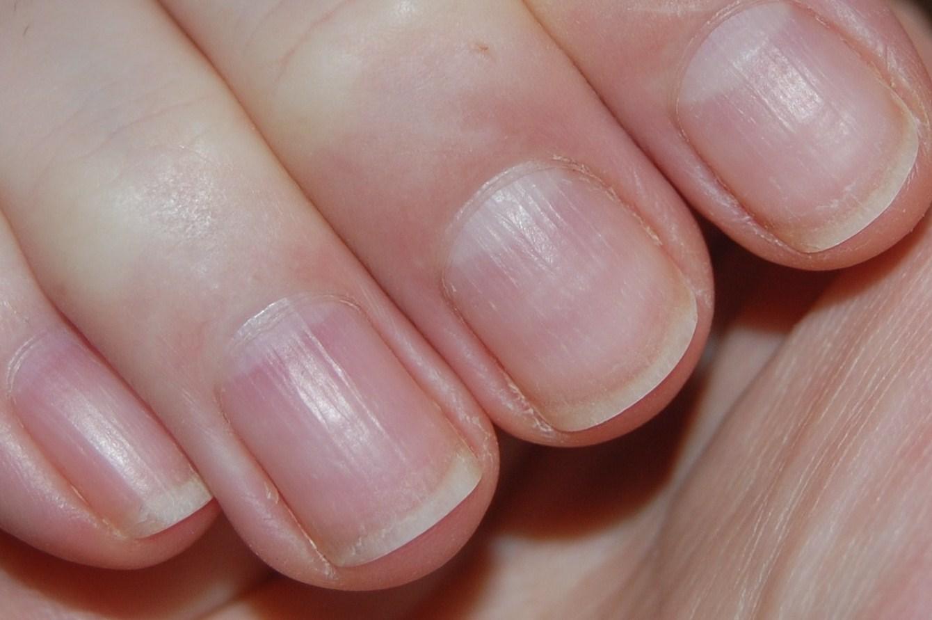 Белые полоски на коже рук