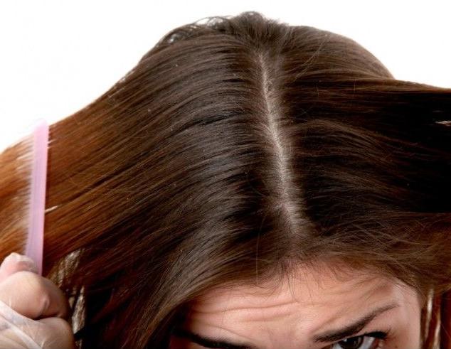 Грибок волосистой части головы - показание к использованию Экзодерила