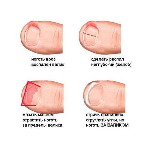 Чем мазать палец с вросшим ногтем