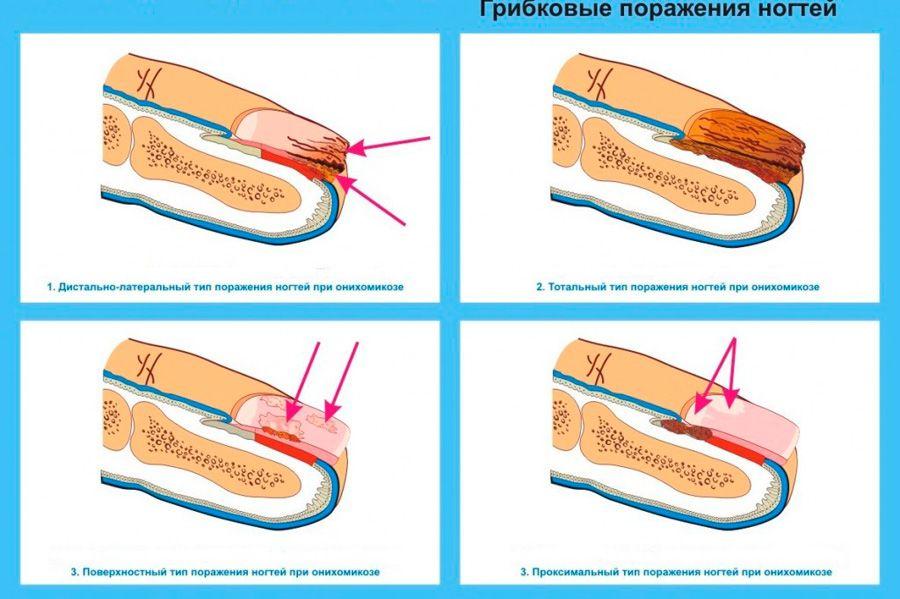 Какое средство недорогое и эффективное от грибка ногтей