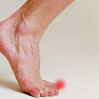 Вросший ноготь на пальце