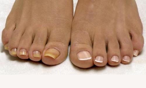 Грибковое поражение ногтей стопы лечение