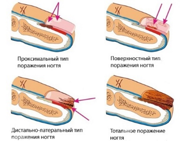 Лечение грибка запущенного грибка ногтей на ногах уксусом отзывы