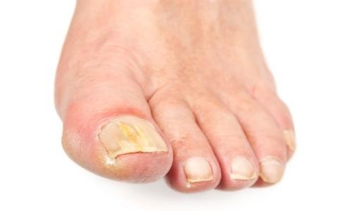 Йод и сода против грибка ногтей отзывы
