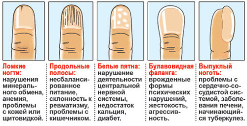Нарушения ногтей