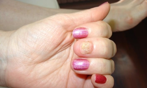Препараты эффективные для лечения грибка кожи