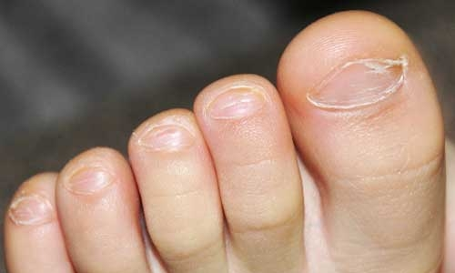Лечение грибка ногтя стопы перекисью
