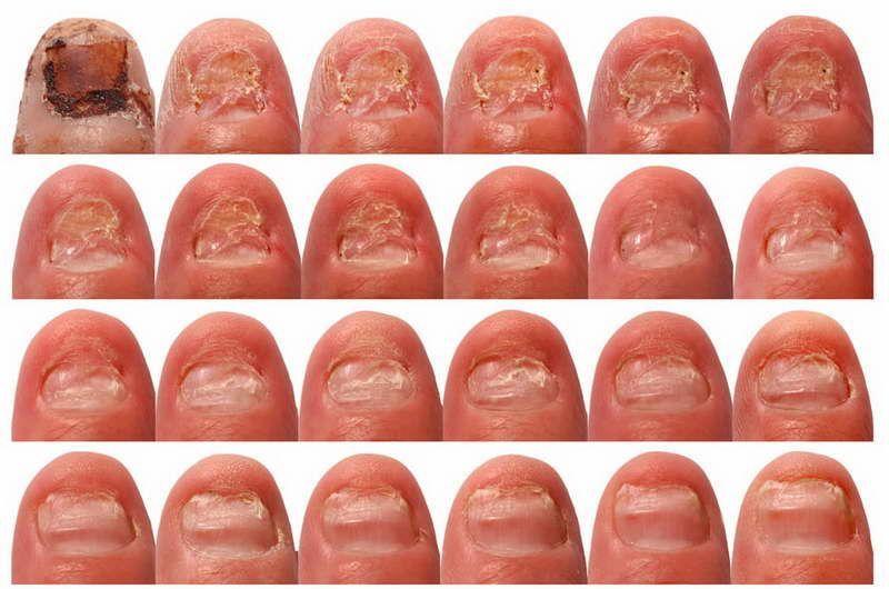 Лечение грибка ногтей у ребенка до года