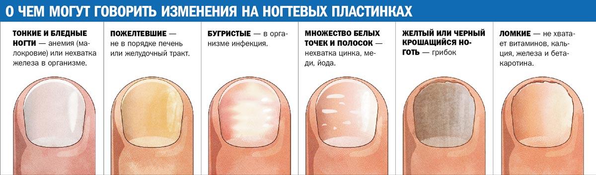 Клотримазол раствор и грибок ногтей