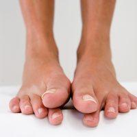 Дикое мясо на больших пальцах ног