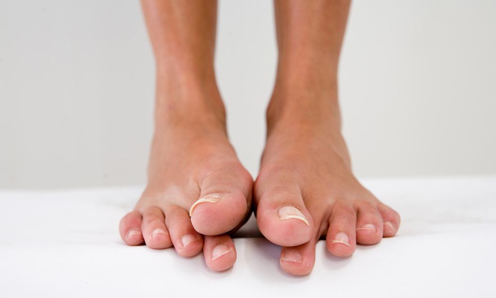 Как лечить гной в ногтей