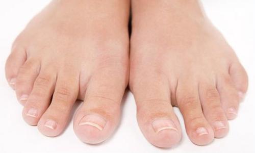 Проблема ногтевого грибка