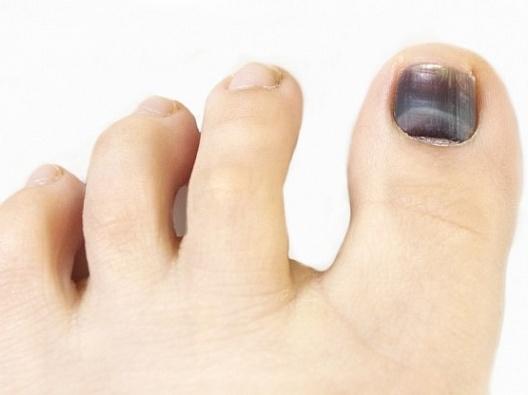Грибковые заболевания ногтей - Микоз ногтей