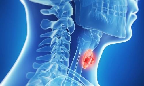 Заболевания щитовидной железы - причина волнистых ногтей