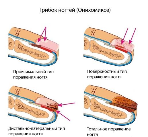 Современные методы лечения грибка на ногтях ног