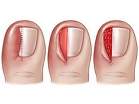 Грибковые заболевания ногтей и кожи и их лечение