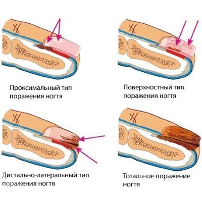 Как вылечить грибок между пальцами ног уксусом