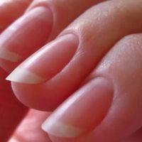 Проблема отслоения ногтей