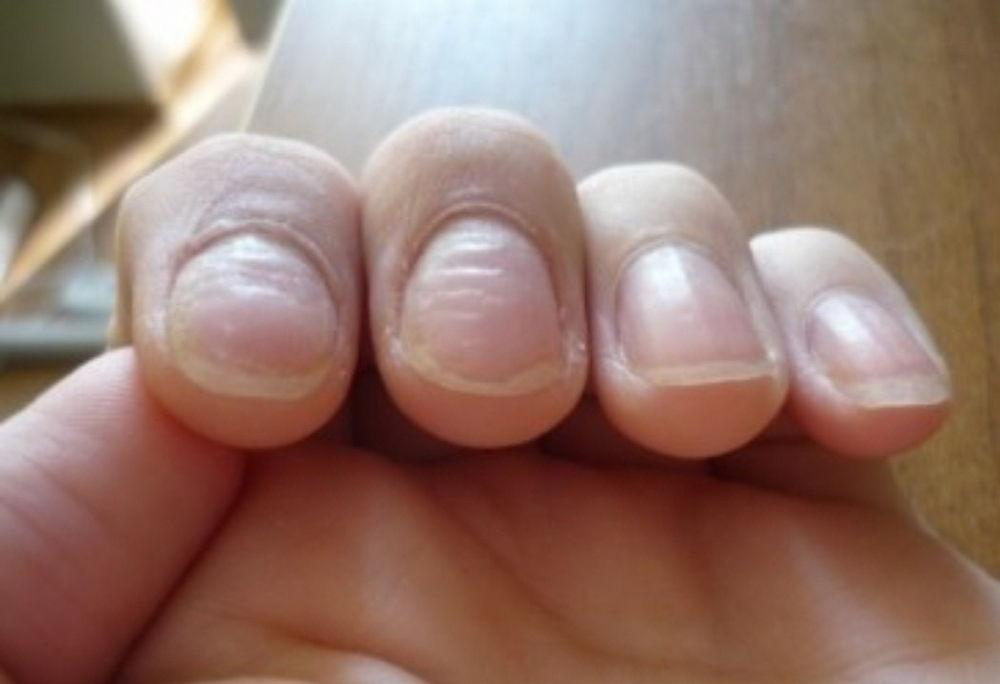 Может ли быть грибок на одном ногте