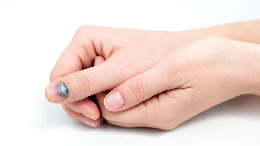 Гематома на ногте большого пальца руки