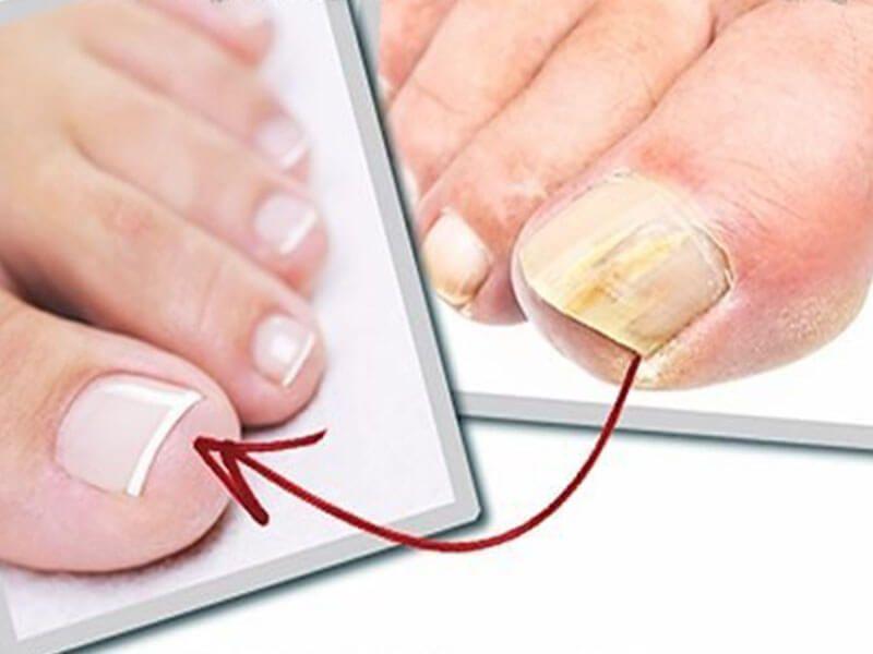 Как вылечить грибок ногтей домашними методами
