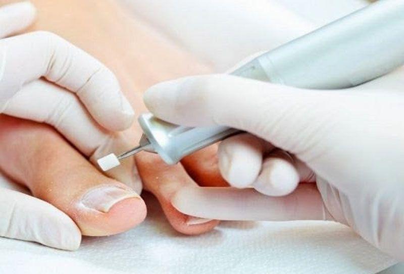 Лечебный педикюр при грибке ногтей в харькове