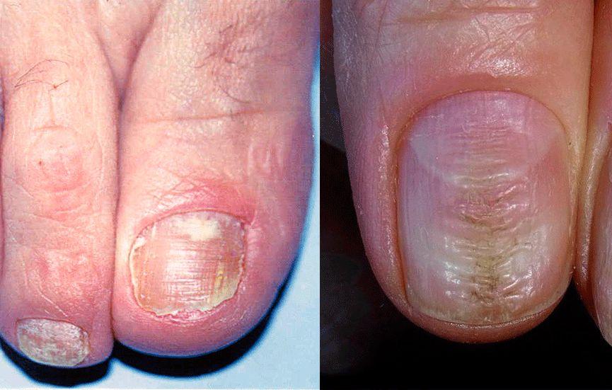 Поперечные полосы на ногтях