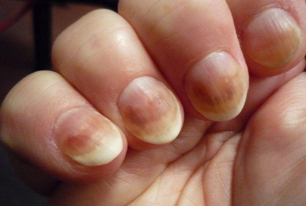 Коричневые полоски на ногтях