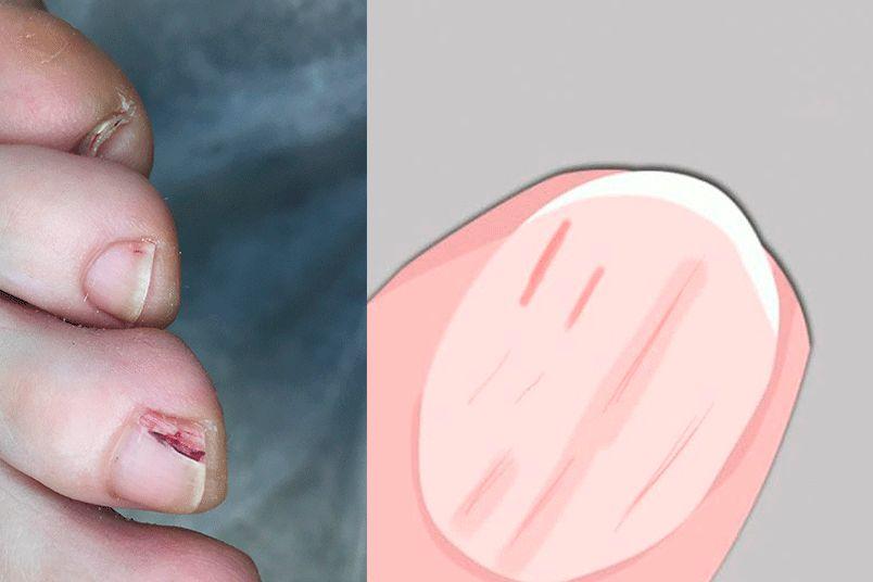 Красные полоски на ногтях